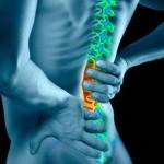 Fine estate aumenta il mal di schiena: colpa del materasso